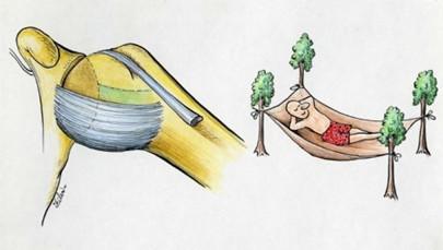 Epaule : Le « hamac » ligamentaire