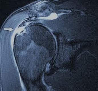 Epaule : IRM