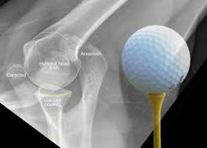 Comparaison balle de golf – tête humérale