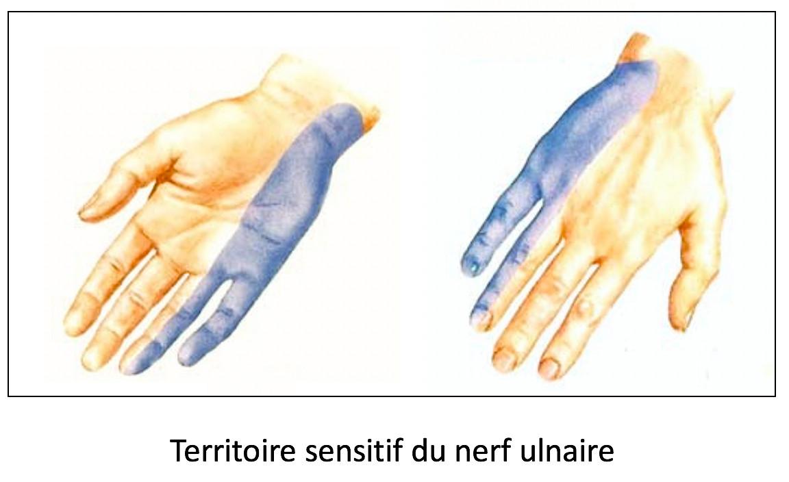 Territoire sensitif du nerf ulnaire
