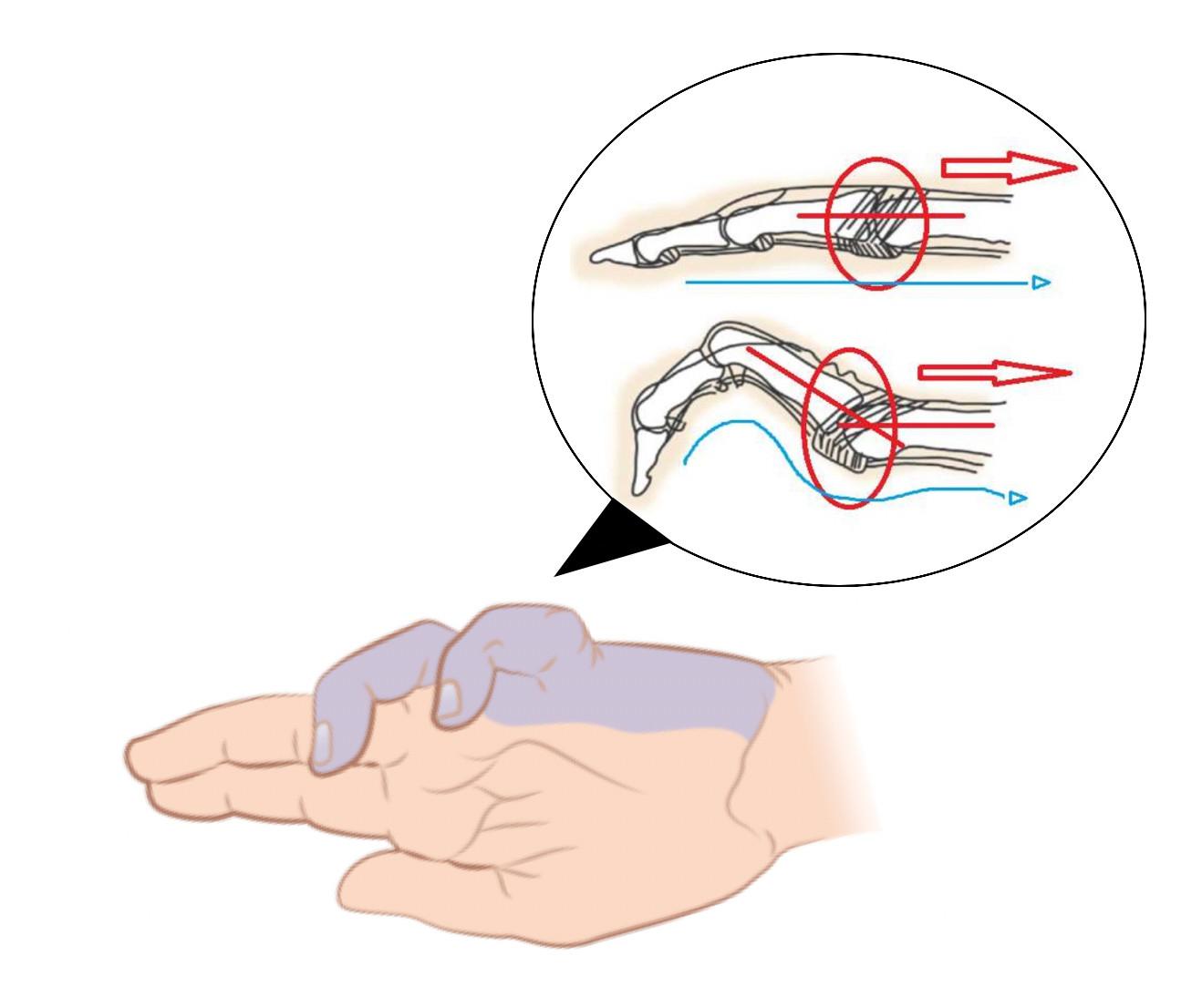 La « main en griffe »