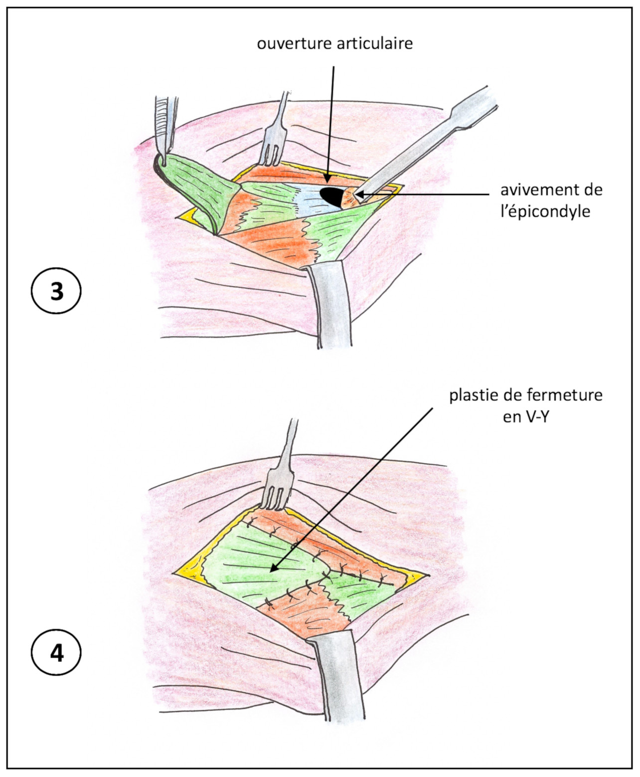 Chirurgie des épicondylite (2)