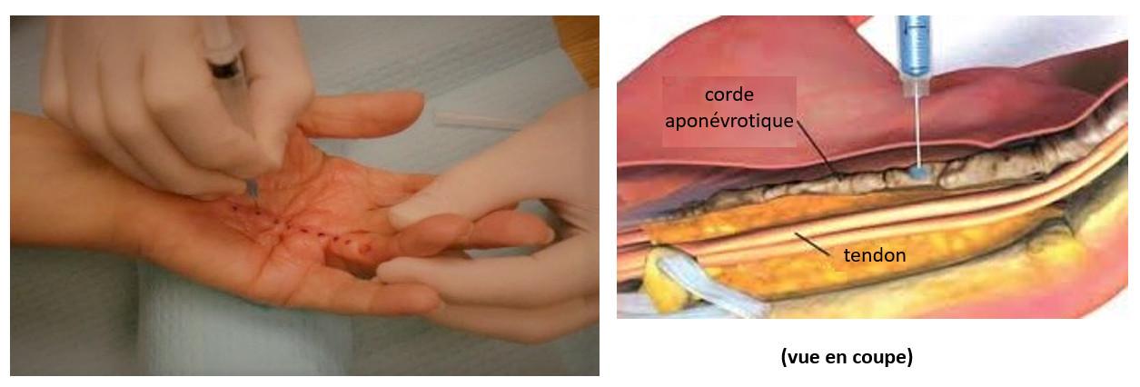 Aponévrotomie percutanée