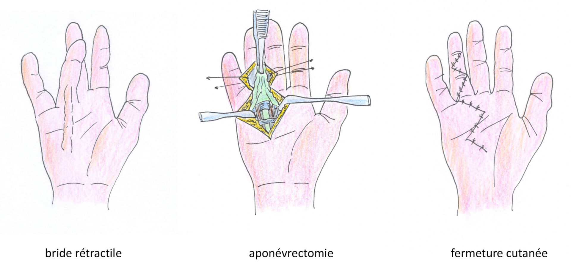 aponévrectomie simple