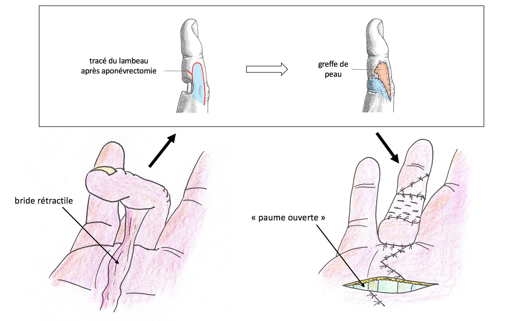 aponévrectomie avec lambeau