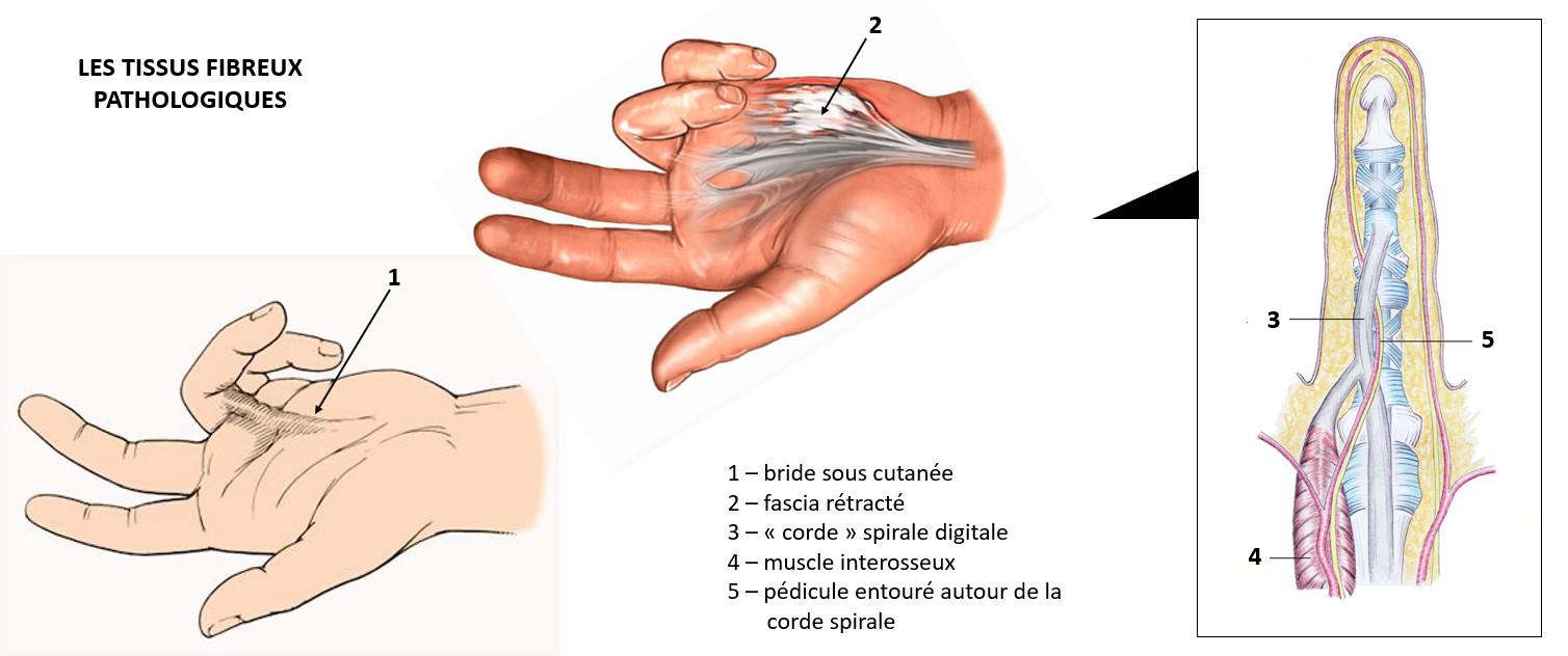 Les tissus fibreux pathologiques