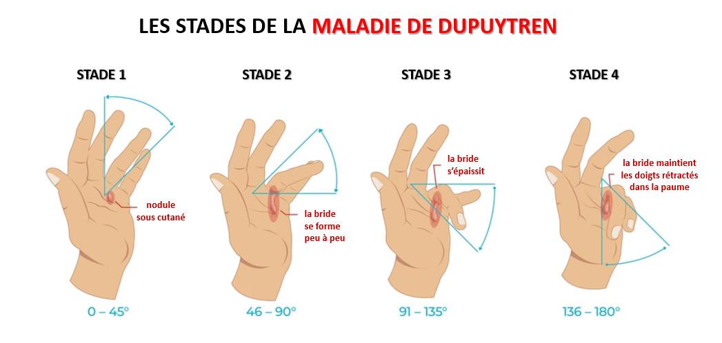 Les stades de la maladie de Dupuytren
