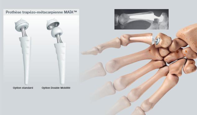 Prothèse trapézo métacarpienne