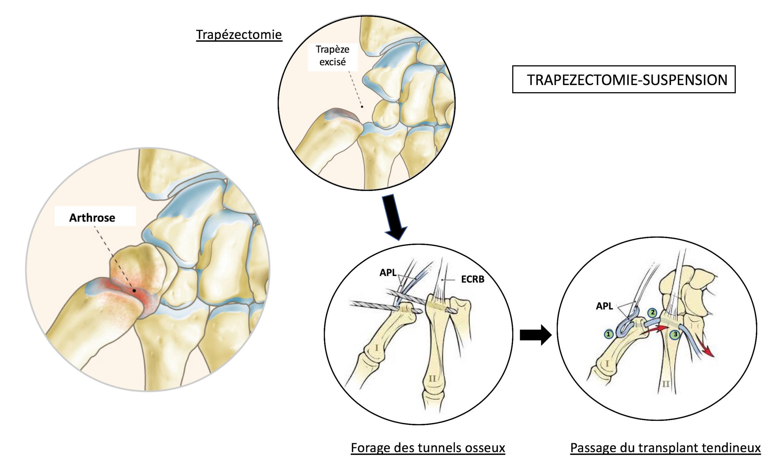 Trapézectomie-ligamentoplastie