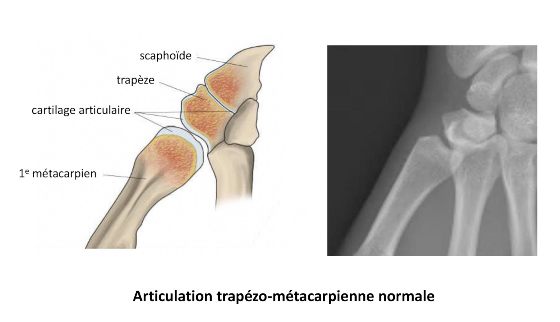 articulation trapézo- métacarpienne normale