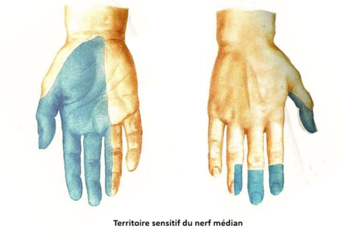 Territoire sensitif du nerf médian