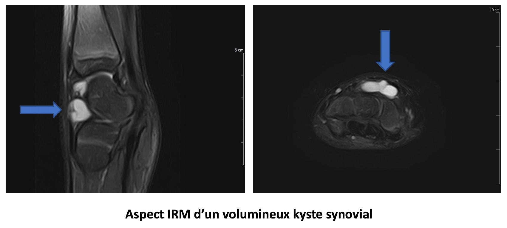 Aspect IRM d'un volumineux kyste synovial