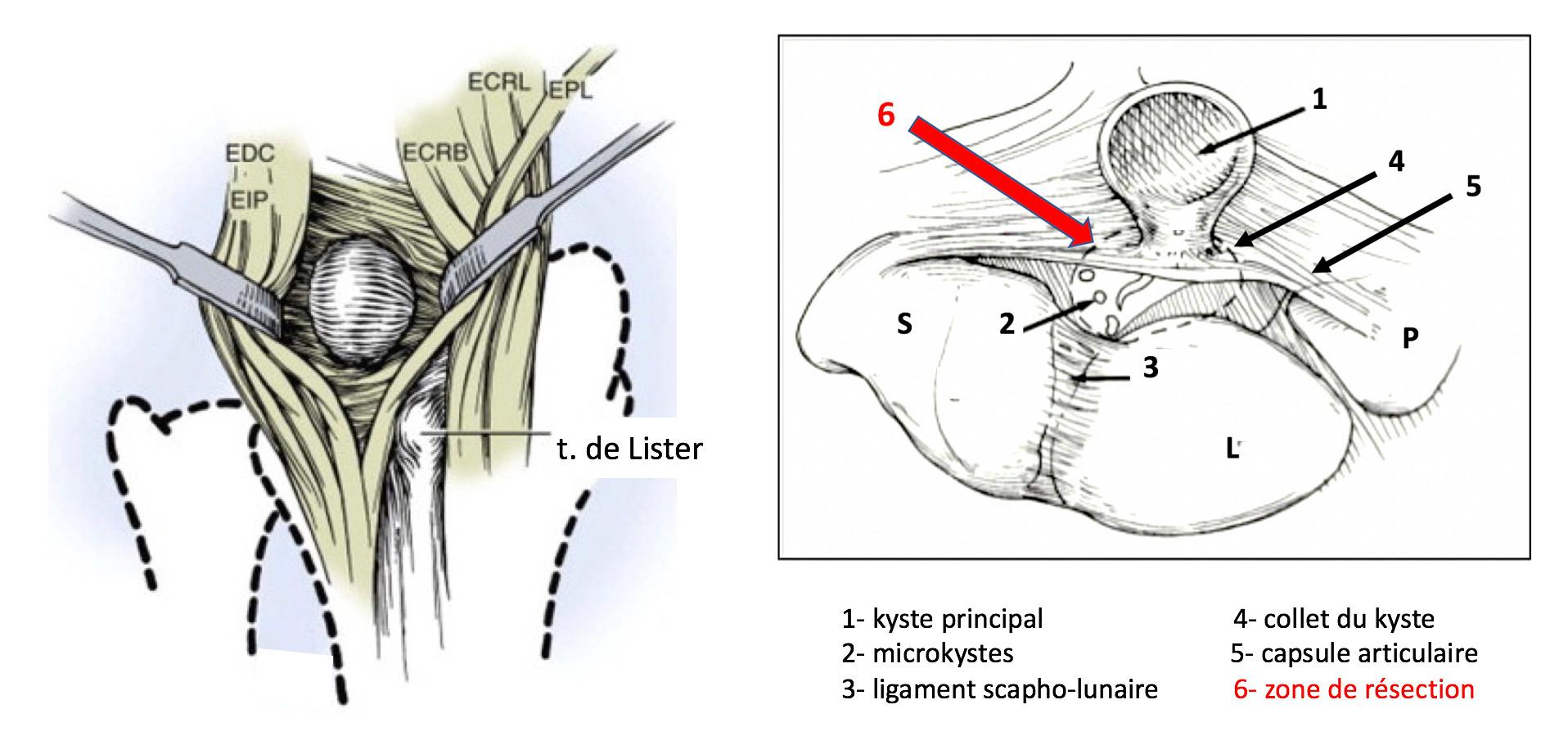 Dissection des kystes du poignet