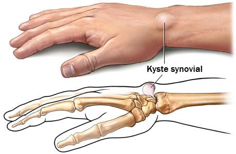 Kyste dorsal du poignet