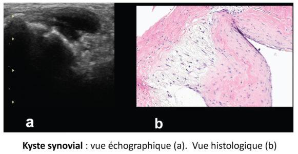 Kyste synovial : vue échographique et histologique