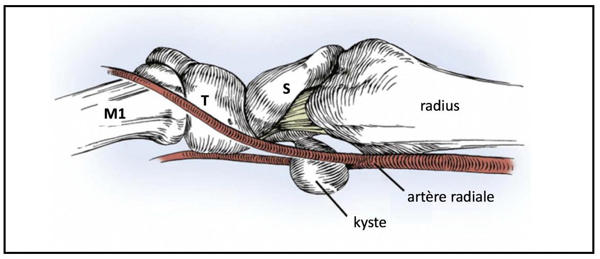 Origine des kystes palmaires du poignet