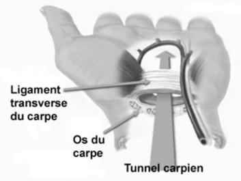Tunnel carpien