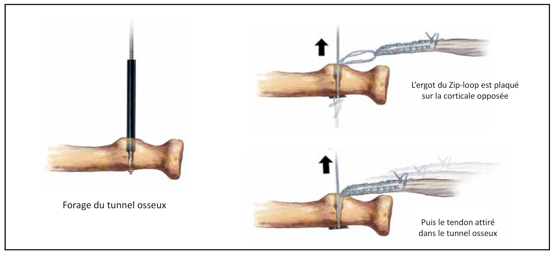 Réinsertion trans osseuse du biceps