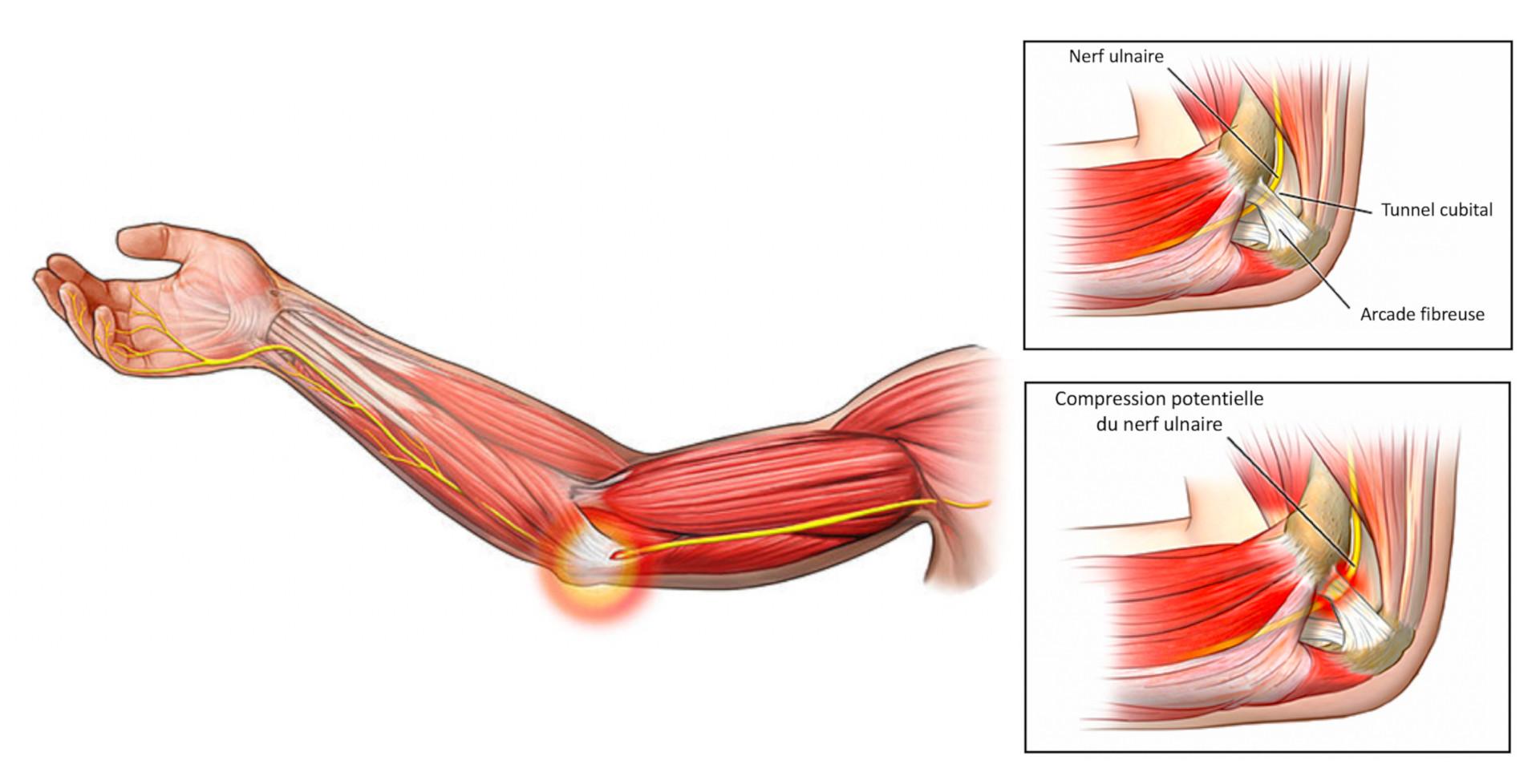 Anatomie du nerf ulnaire
