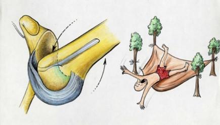 Le « hamac » ligamentaire rompu