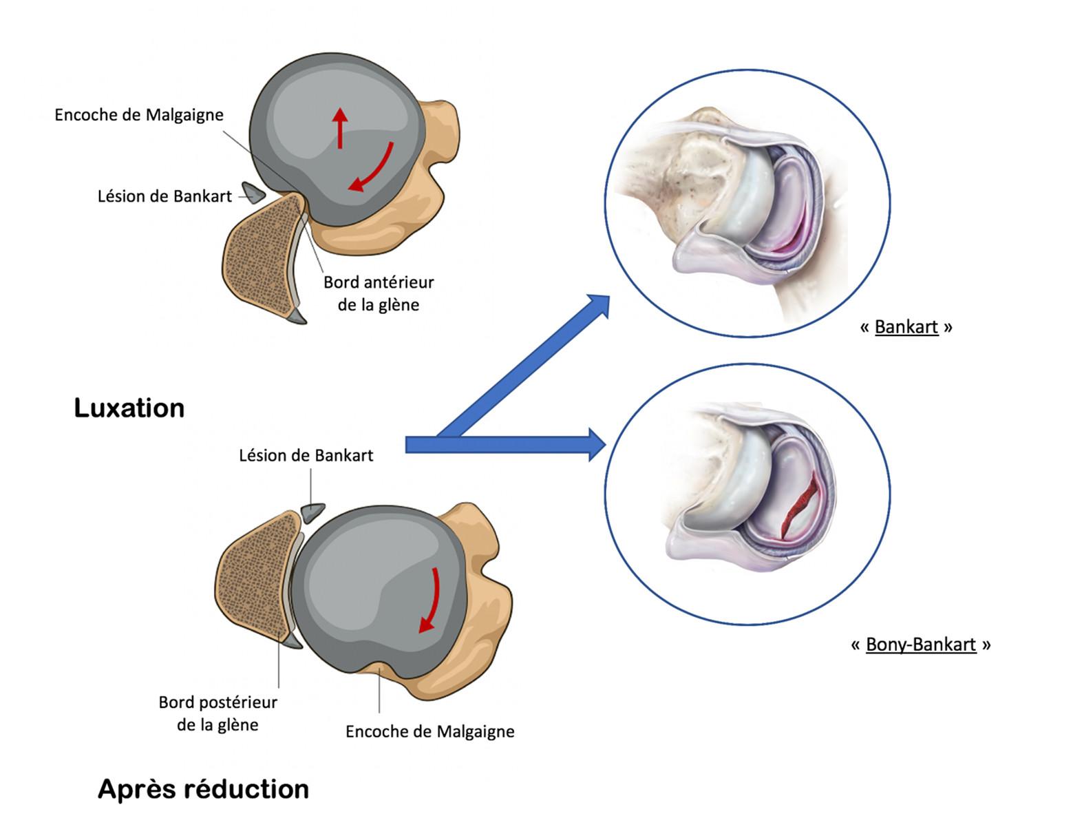 Lésions de passage de l'instabilité d'épaule