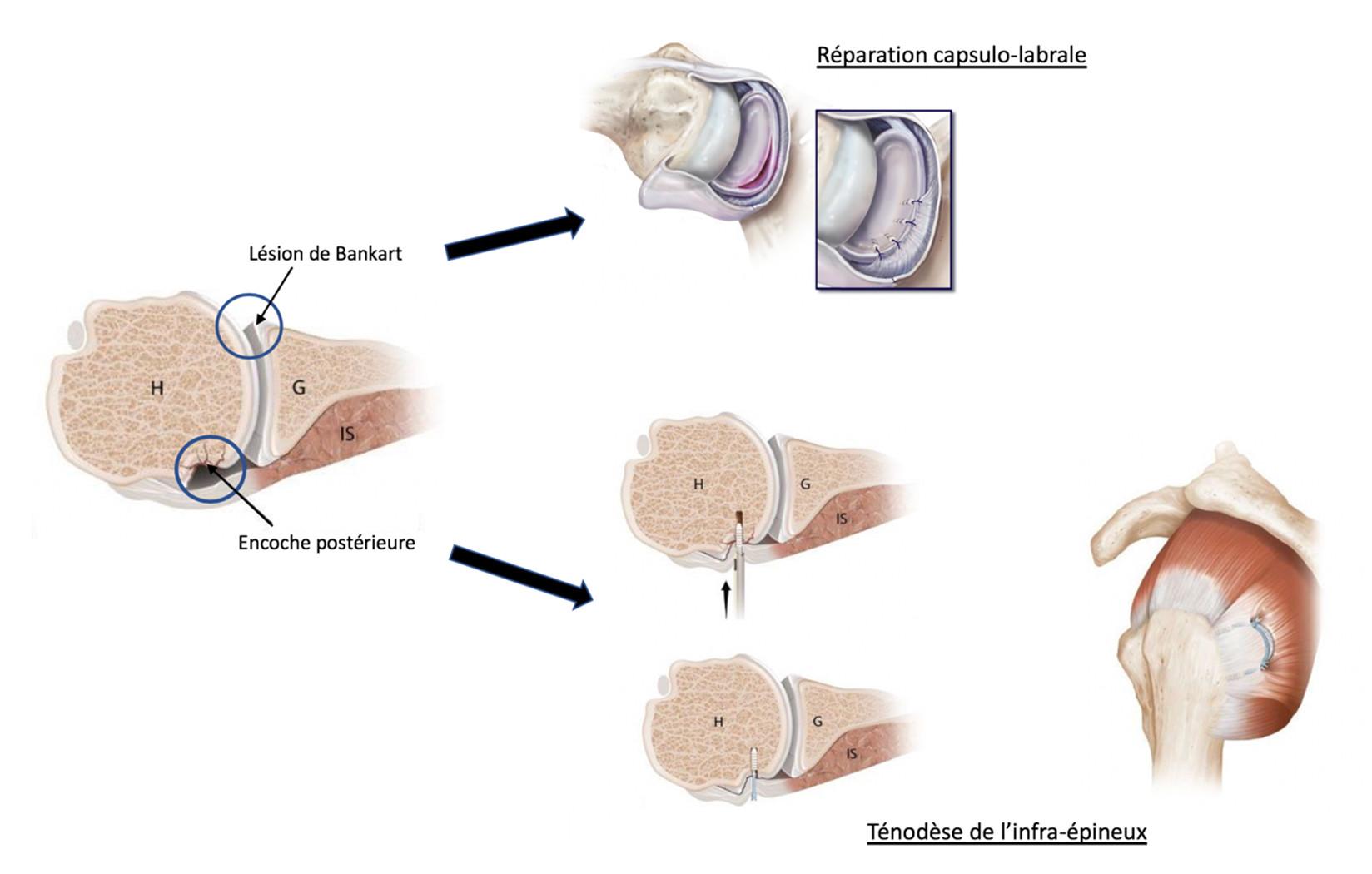 Réparation arthroscopique des instabilités d'épaule
