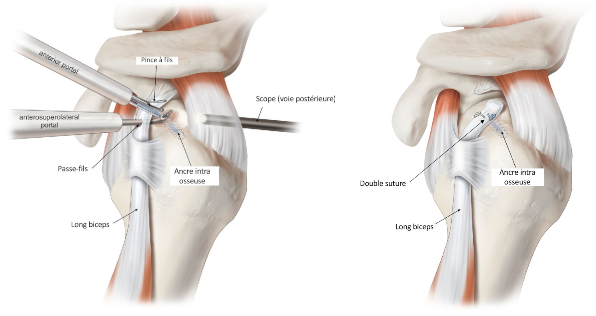 Ténodèse du biceps