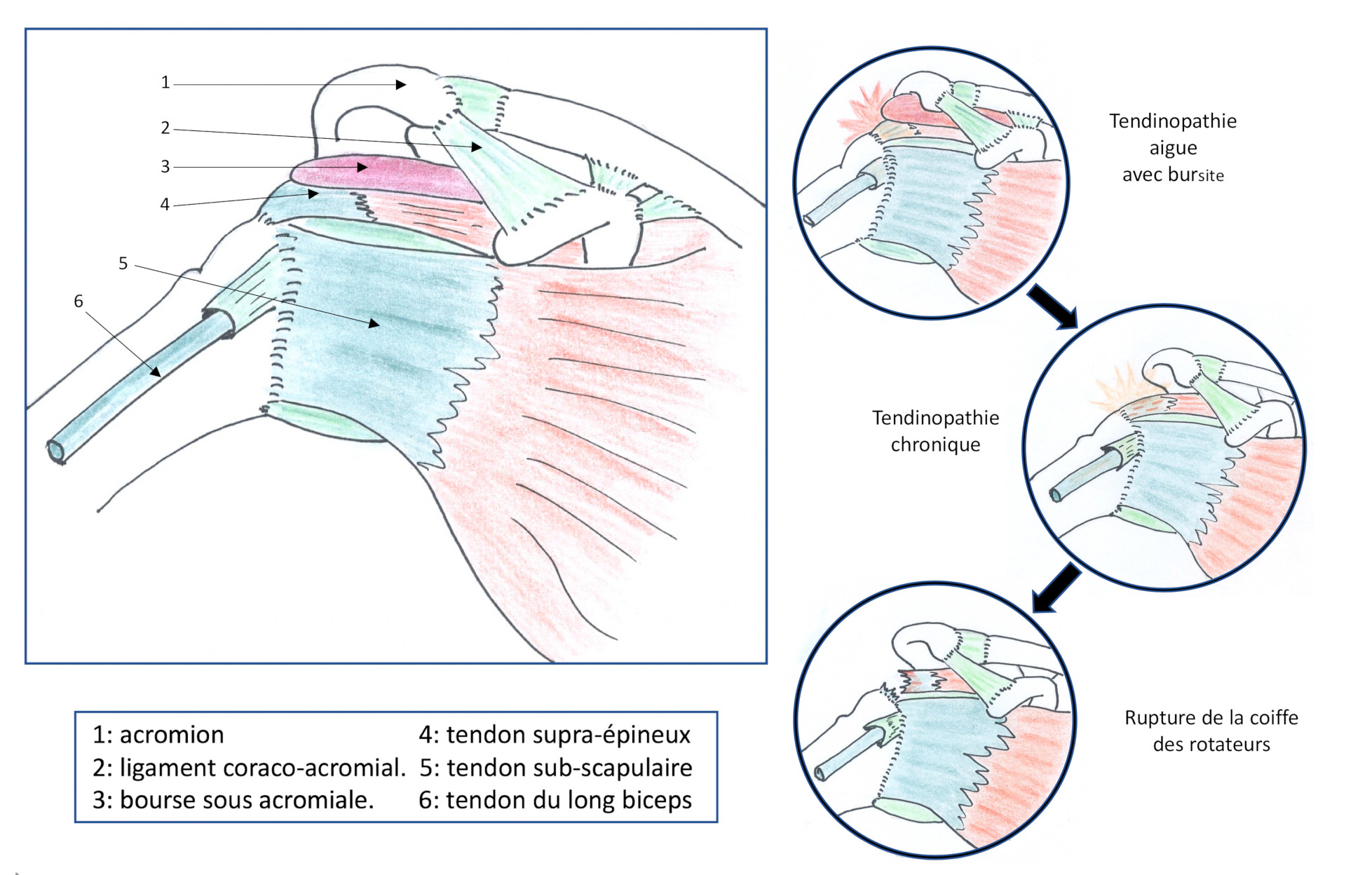 Evolution des tendinopathies