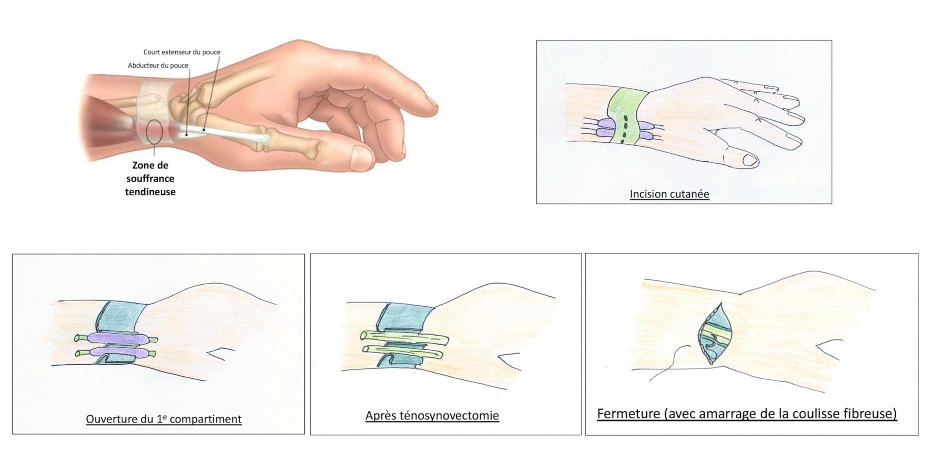 Chirurgie de la ténosynovite de De Quervain