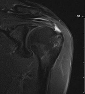 epaule IRM (vue coronale)