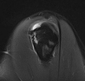 epaule IRM (vue sagittale)